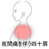 『四十肩 室蘭登別すのさき鍼灸整骨院 症例報告』の画像