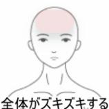 『妊婦さんの頭痛症例を追加です!』の画像