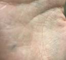 手の中にシャーペンの芯が埋まってる奴wwwwwwwwwww