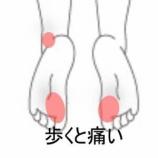 『足裏母指球部の痛み 室蘭登別すのさき鍼灸整骨院 症例報告』の画像