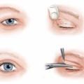 Cắt mí mắt có gây hại không?