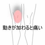 『膝内側の痛み 室蘭登別すのさき鍼灸整骨院 症例報告』の画像