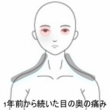 『眼の奥の痛み 室蘭登別すのさき鍼灸整骨院 症例報告』の画像