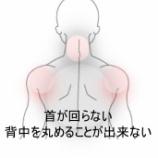 『背中と首の痛み 室蘭登別すのさき鍼灸整骨院 症例報告』の画像