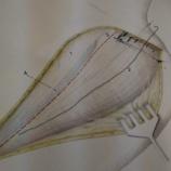 『上腕骨頸部骨折に対する展開の工夫』の画像