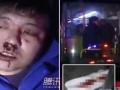 【動画あり】バスの車内で放尿した女が運転手に注意されて逆ギレ、生理用ナプキンを投げつけ、運転手の鼻を殴ってケガ負わす