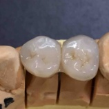 『正しい歯医者は?良い歯医者 悪い歯医者の見分け方 歯科医は職人』の画像