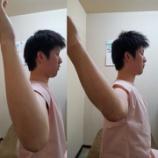 『野球肩の症例☆整動鍼~四肢編より~』の画像