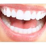 初めて歯のホワイトニングに行ってきたんだがww