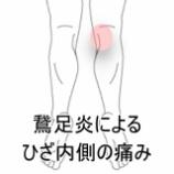 『鵞足炎による痛み』の画像
