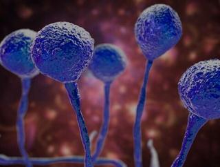 インドの新型コロナ感染者、回復者の間で真菌感染症「ムコール症」が急増中