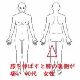 『≪伸ばすと痛い膝を抱える 40代女性≫』の画像