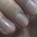 【画像】俺の爪に縦線入ってるんだけどこれ何か知っている奴いる??