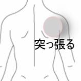 『肩の痛み 室蘭登別すのさき鍼灸整骨院 症例報告』の画像