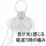 『頸背部の痛み 室蘭登別すのさき鍼灸整骨院 症例報告』の画像
