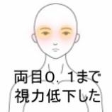 『コロナ禍における視力低下 室蘭登別すのさき鍼灸整骨院 症例報告 』の画像