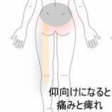 『仰向けで寝ることが出来ない 登別室蘭すのさき鍼灸整骨院 症例報告』の画像