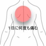 『産後背部痛 室蘭登別すのさき鍼灸整骨院 症例報告』の画像