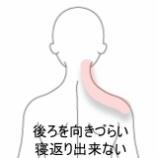 『首痛 室蘭登別すのさき鍼灸整骨院 症例報告』の画像