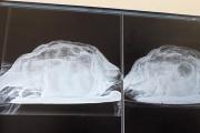 腹部の裂けるような痛みを訴える英女性の性器から18センチの亀の死体を摘出  テネリフェ島  スペイン紙