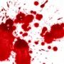 パチ屋で男が血まみれになっていた