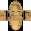 351.矯正って何がいいんだろう?ー歯科矯正の臨床的意義ー