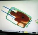 【画像】エックス線を通したスーツケースに人影、 中に8歳少年