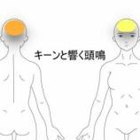 『頭鳴 室蘭登別すのさき鍼灸整骨院 症例報告』の画像