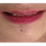 『噛めて、美しい口元の追求。ビフォア』の画像