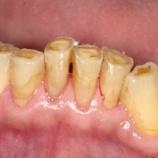 『歯ぎしり(ブラキシズム)について☆【篠崎 ふかさわ歯科クリニック】』の画像