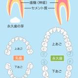『虫歯になりやすいのは?【篠崎 ふかさわ歯科クリニック】』の画像