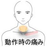 『鎖骨の痛み 室蘭登別すのさき鍼灸整骨院 症例報告』の画像