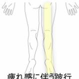 『手術を勧められた程の腰椎椎間板ヘルニア 室蘭登別すのさき鍼灸整骨院 症例報告』の画像
