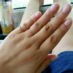 手湿疹・脱ステロイド・そして角質培養