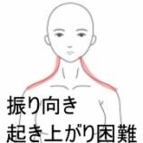 『寝違えによる痛みと動作制限 室蘭登別すのさき鍼灸整骨院症例報告』の画像