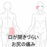 『口がひらきづらい 室蘭登別すのさき鍼灸整骨院症例報告』の画像