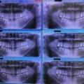 379.矯正治療が歯周病予防につながるって本当?