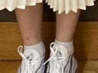 【日向坂46】スージーが弄られた足首の傷ってこれかwwwwwwwwww