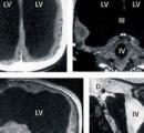 足の怪我のために病院で検査したら脳が半分以上無いことが判明してワロタ → でも異常なし