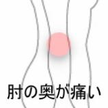 『フライパンを持つと肘が痛い 室蘭登別すのさき鍼灸整骨院 症例報告』の画像