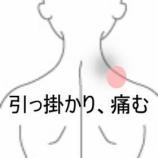 『寝違い 室蘭登別すのさき鍼灸整骨院 症例報告』の画像