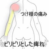 『腕の痺れ 室蘭登別すのさき鍼灸整骨院 症例報告』の画像