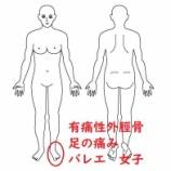 『≪中学生女子・有痛性外脛骨による痛み≫~約1か月前からの痛みで運動出来ない~』の画像