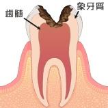 『歯の神経の治療』の画像