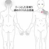 『胸鎖関節炎からの頭痛・耳鳴り 室蘭登別すのさき鍼灸整骨院 症例報告』の画像
