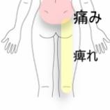 『ギックリ&腰椎椎間板ヘルニア様症状 室蘭登別すのさき鍼灸整骨院 症例報告』の画像