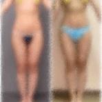 乳がん全摘からの脂肪吸引&乳房再建
