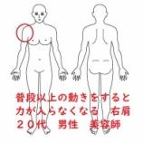 『≪1年前から肩を回すと力が入らなくなる≫~整形外科では骨は何も問題ないです~口コミも併せていただきました☆』の画像