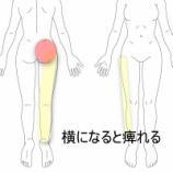 『寝付けない程の坐骨神経痛 室蘭登別すのさき鍼灸整骨院 症例報告』の画像