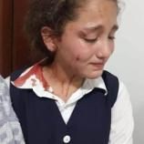 『2020.7.31 Ari Shika氏特集 -これは、イスラエルの兵士がパレスチナの学生を学校を去るときに襲った方法です。シオニズムは癌です。』の画像